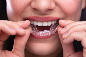 Lady inserting a clear aligner.